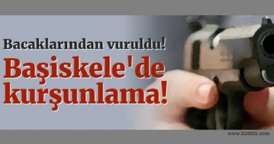 BAŞİSKELE'DE KURŞUNLAMA. BACAKLARINDAN VURDULAR